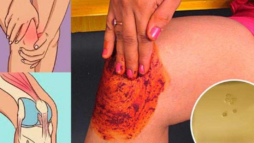 Как лечить боли в коленных суставах в домашних условиях