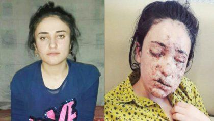 Несломленная: она два года была рабыней джихадистов, а убегая от них, наступила на мину…